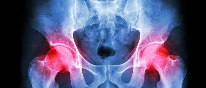 Chiropractic Charlotte NC Hip Pain